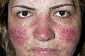 rosacea, acne rosacea, skin problems, red skin