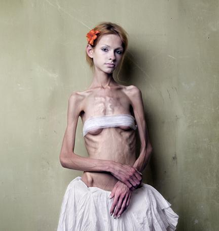 anorexia nervosa colleen anderson