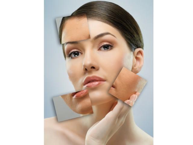 skin bleaching, vanity, body modification, adornment, skin, blemishes